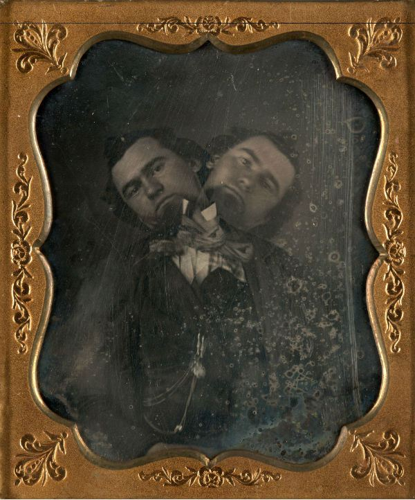 Unidentified American artist, Two-Headed Man, ca. 1855. Daguerreotype; The Nelson-Atkins Museum of Art, Kansas City