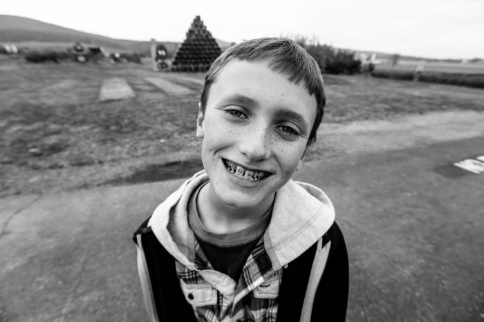 Brother, Christopher, who is 10 and just got braces.